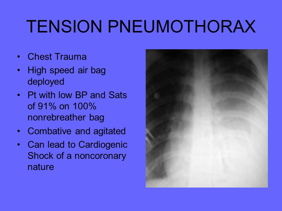 TENSION PNEUMOTHORAX Chest Trauma High speed air bag deployed