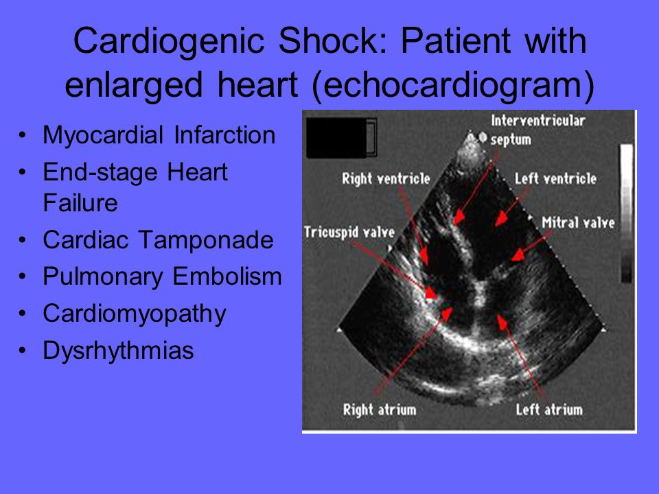 Cardiogenic Shock: Patient with enlarged heart (echocardiogram)