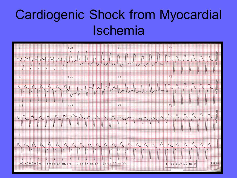 Cardiogenic Shock from Myocardial Ischemia