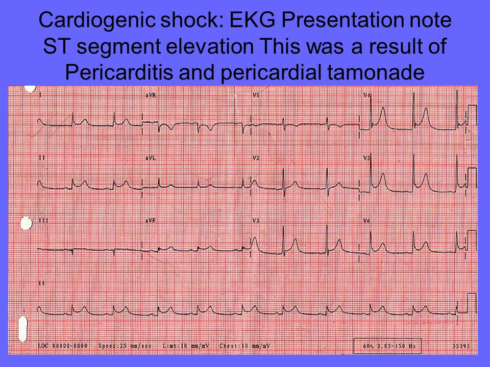 Cardiogenic shock: EKG Presentation note ST segment elevation This was a result of Pericarditis and pericardial tamonade