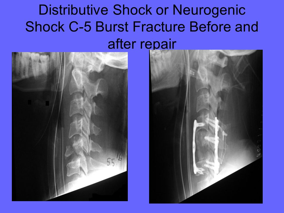 Distributive Shock or Neurogenic Shock C-5 Burst Fracture Before and after repair