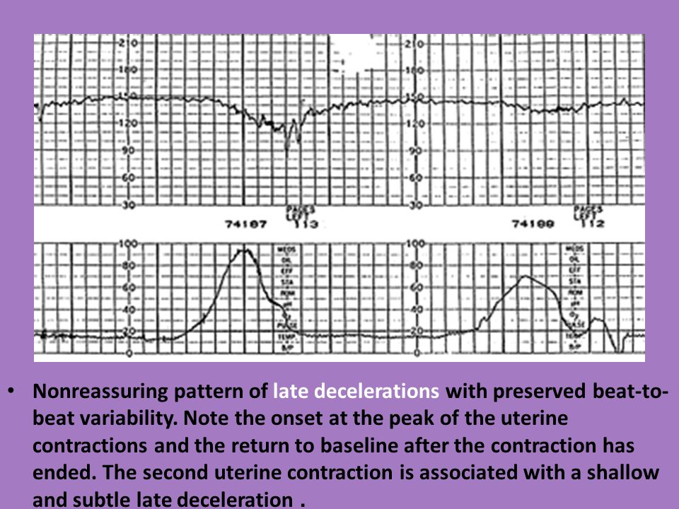 decelerations defined Ii definition variable in relation to contraction variable shape of deceleration  abrupt onset and return (steep slope of change) contrast with.