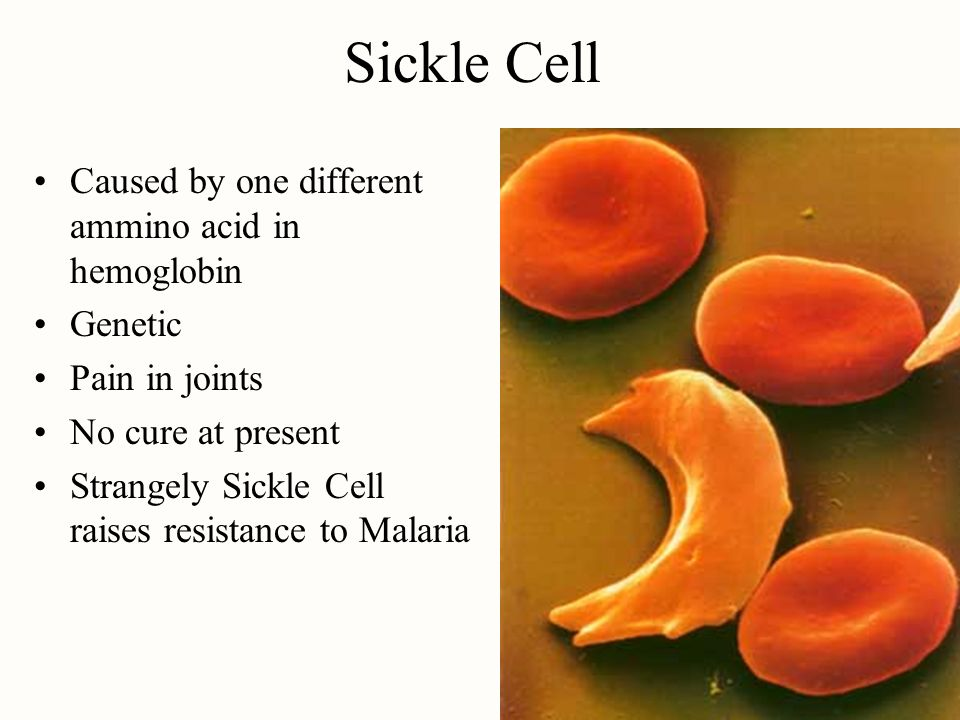 Sickle Cell Caused by one different ammino acid in hemoglobin Genetic