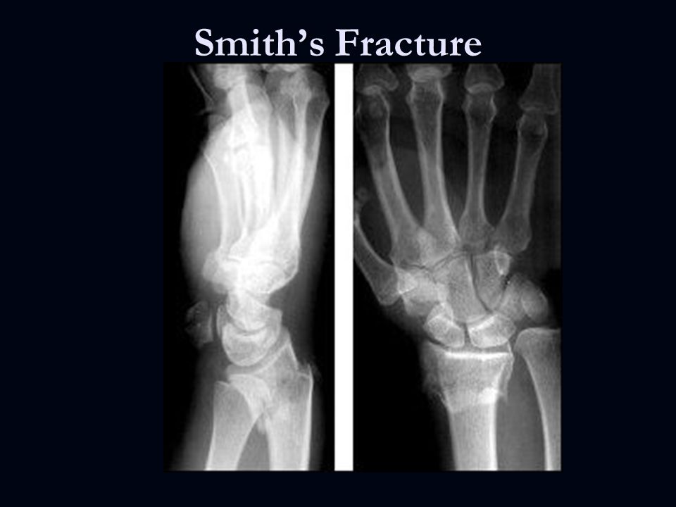 Pediatric Orthopedic Fractures - ppt video online download