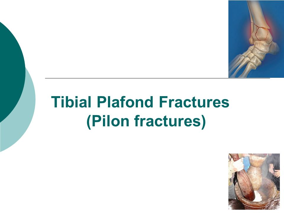 Tibial shaft fractures ppt video online download - Tibial plafond fracture classification ...