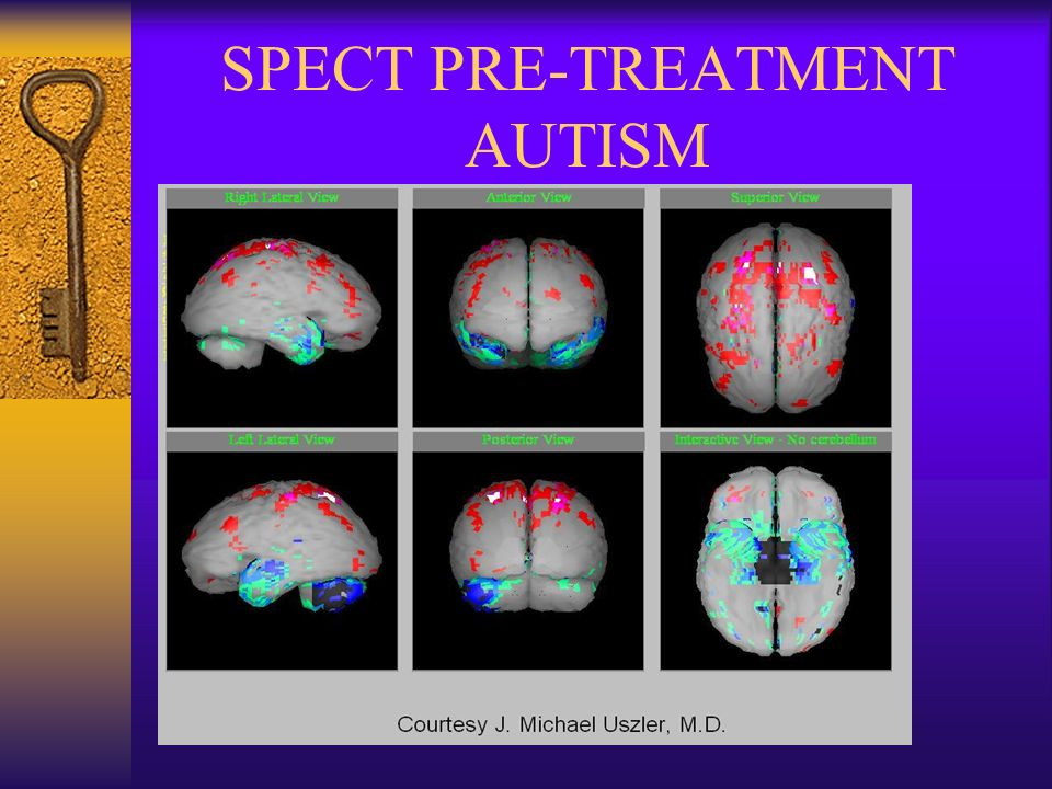 HYPERBARIC OXYGEN THERAPY AND AUTISM - ppt video online download