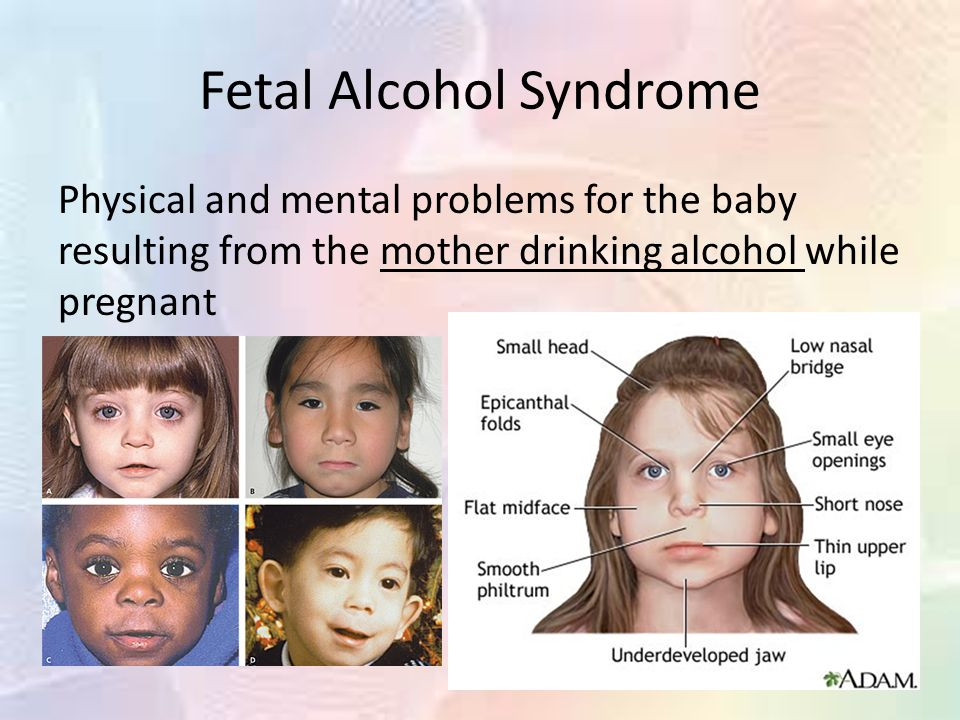 fetal alcohol syndrome term paper Fetal alcohol syndrome is a series of birth defects such as physical, mental, behavioral and learning problems caused by the mother drinking alcohol.