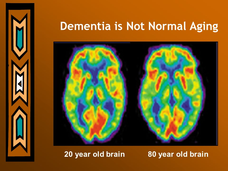 Dementia is Not Normal Aging