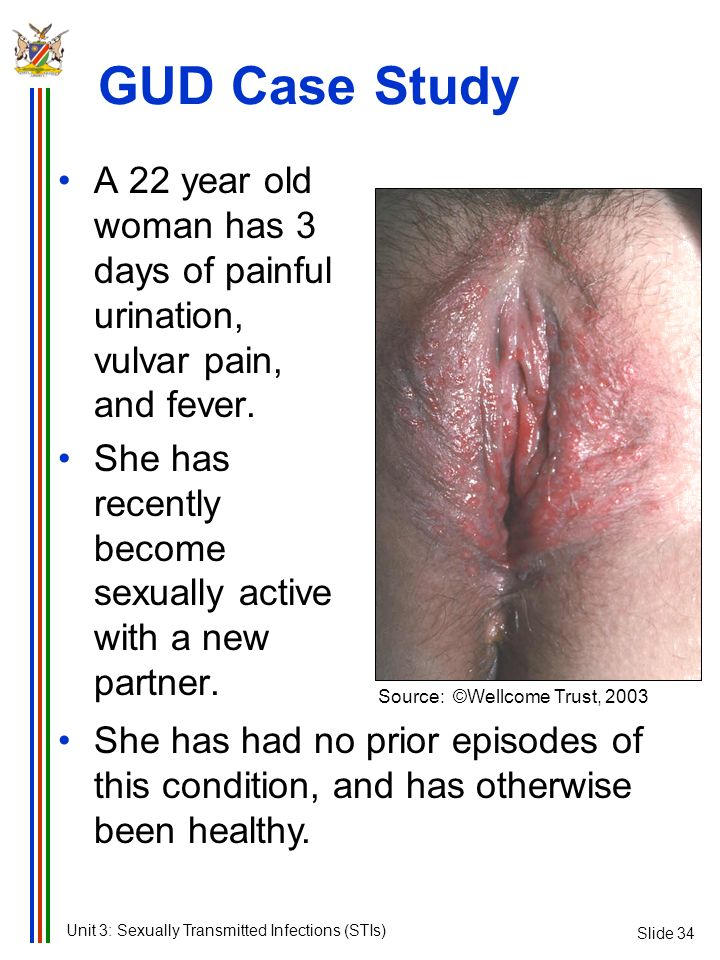 GUD Case Study Slide 34. A 22 year old woman has 3 days of painful urination, vulvar pain, and fever.