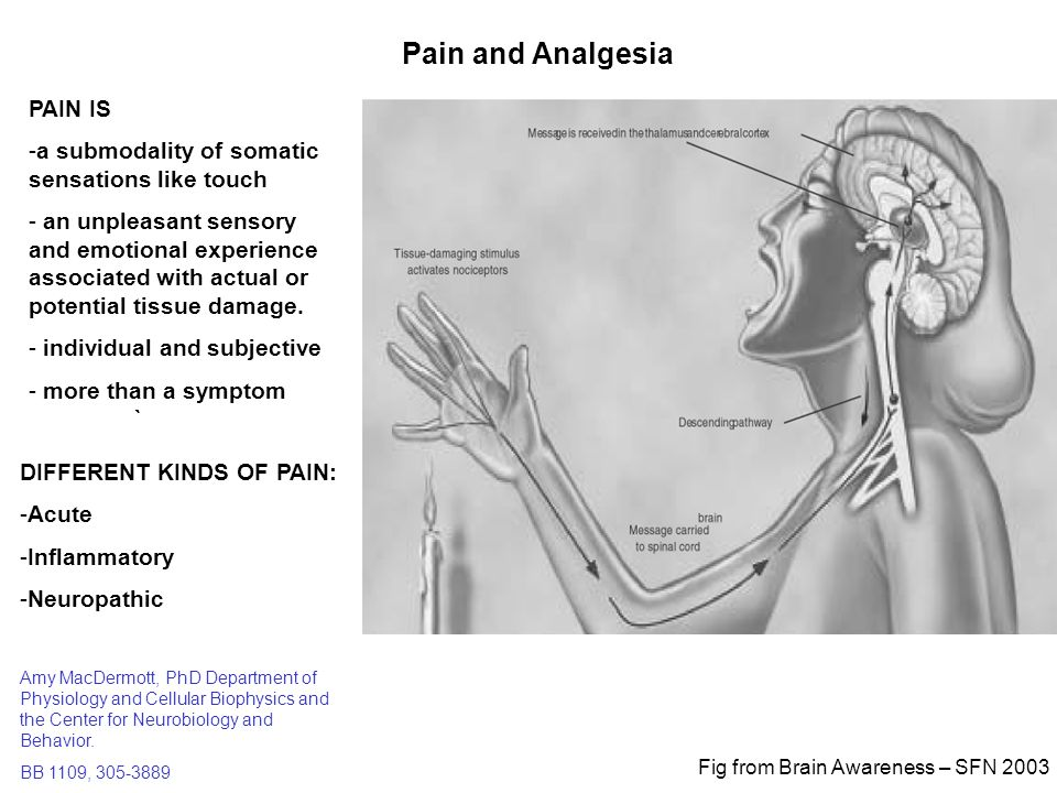 Pain and Analgesia PAIN IS - ppt video online download