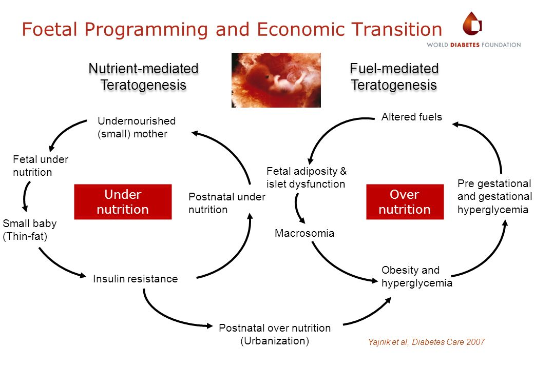 Foetal Programming and Economic Transition