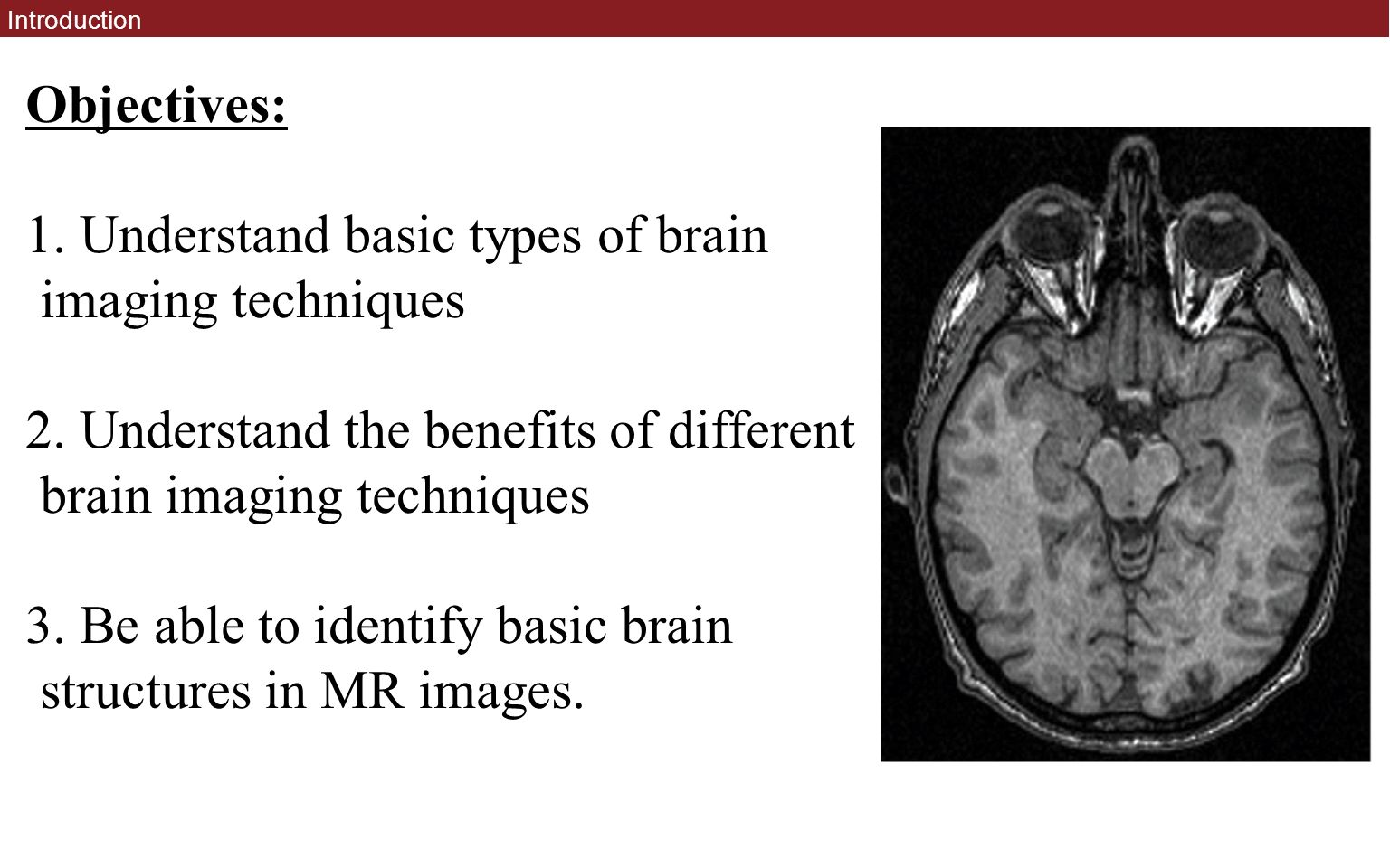 brain imaging techniques These are the five primary methods of scanning the brain for structure and function  the most important lesson from 83,000 brain scans  14:37 brain scanning and imaging techniques (intro .