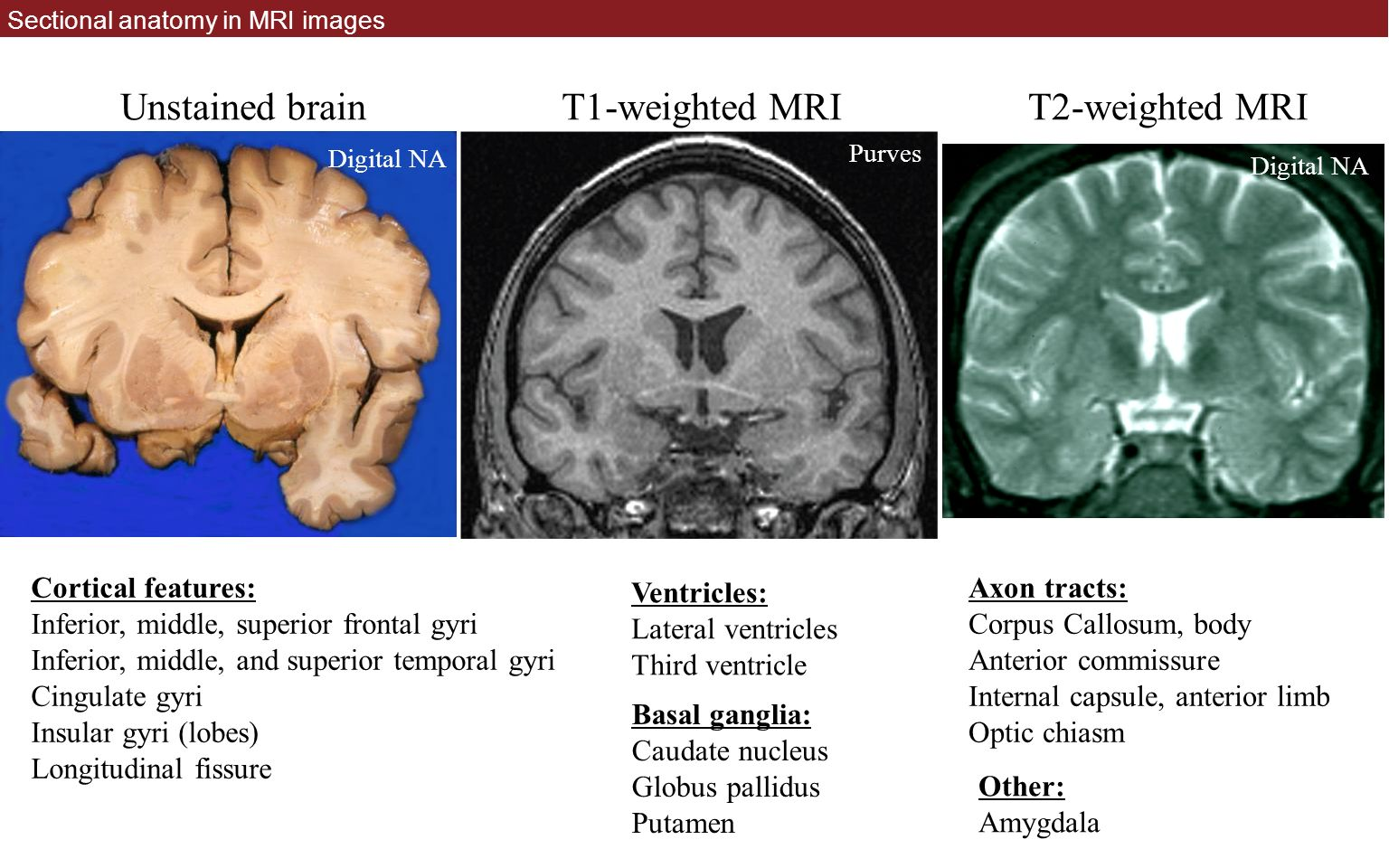 Cross sectional anatomy mri