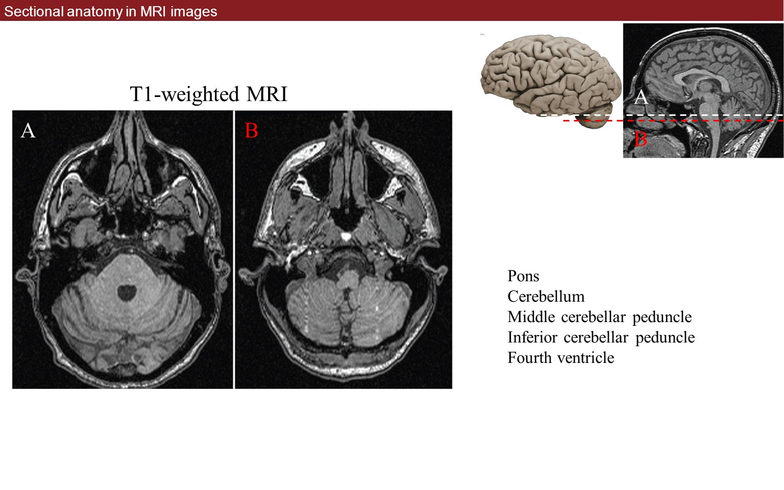 Sectional anatomy by mri and ct