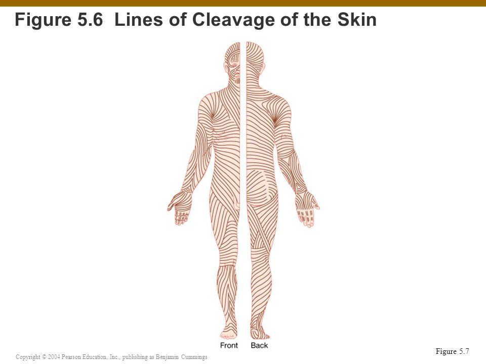 Figure 5.6 Lines of Cleavage of the Skin