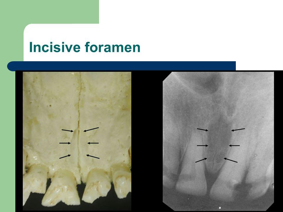 Oral radiology II. - ppt video online download