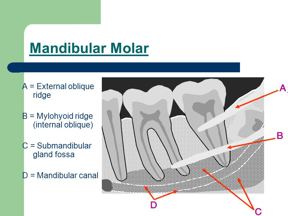 Oral radiology II. - ppt video online download
