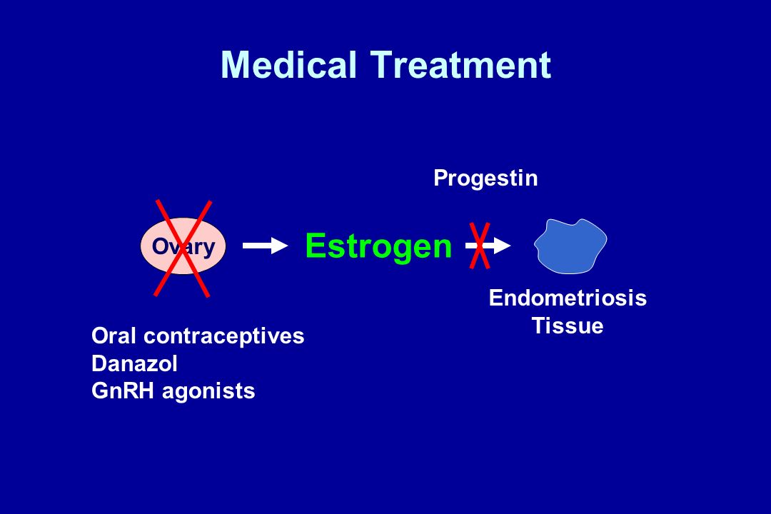 Medical Treatment Estrogen Progestin Ovary Endometriosis Tissue