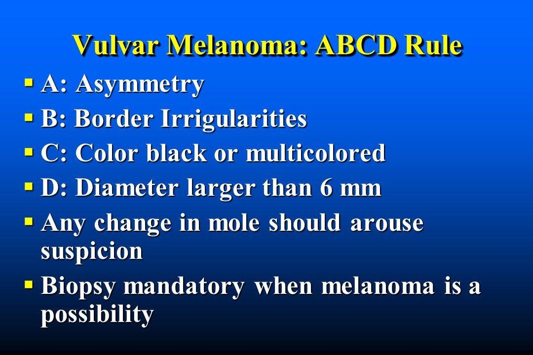 Vulvar Melanoma: ABCD Rule