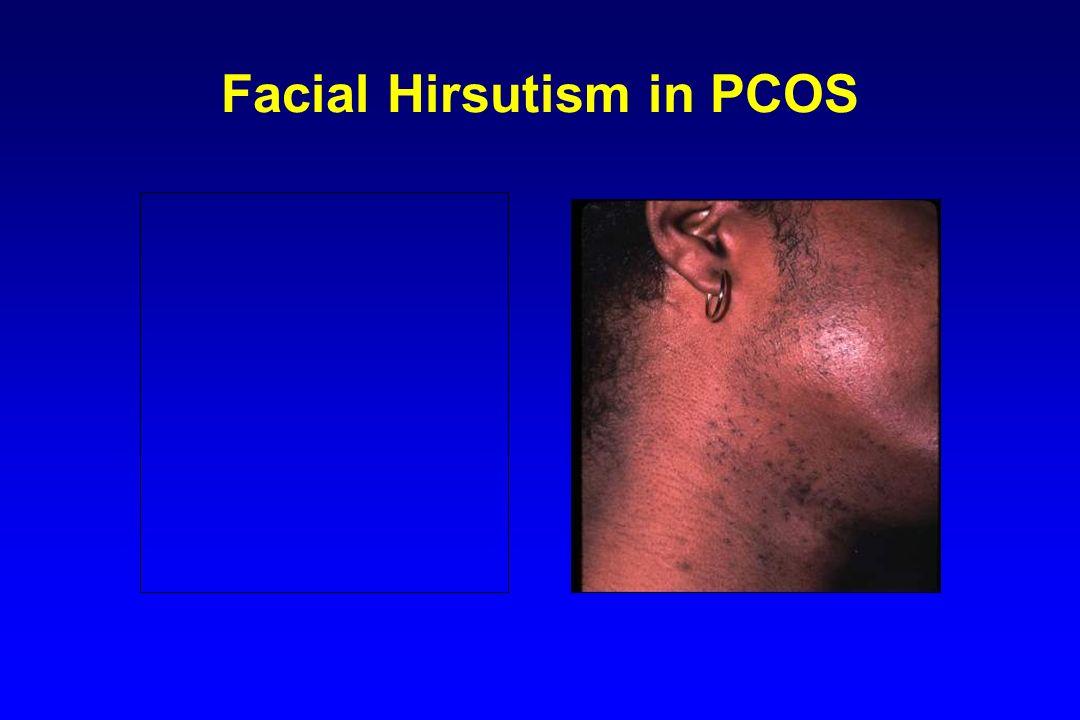 Facial Hirsutism in PCOS