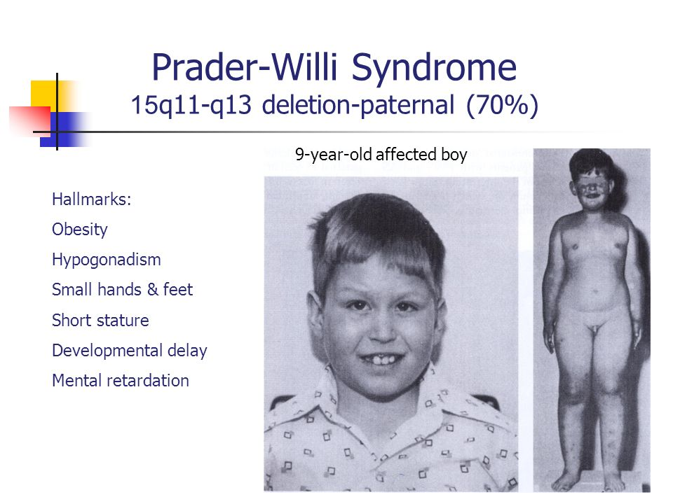 a description of prader willi syndrome