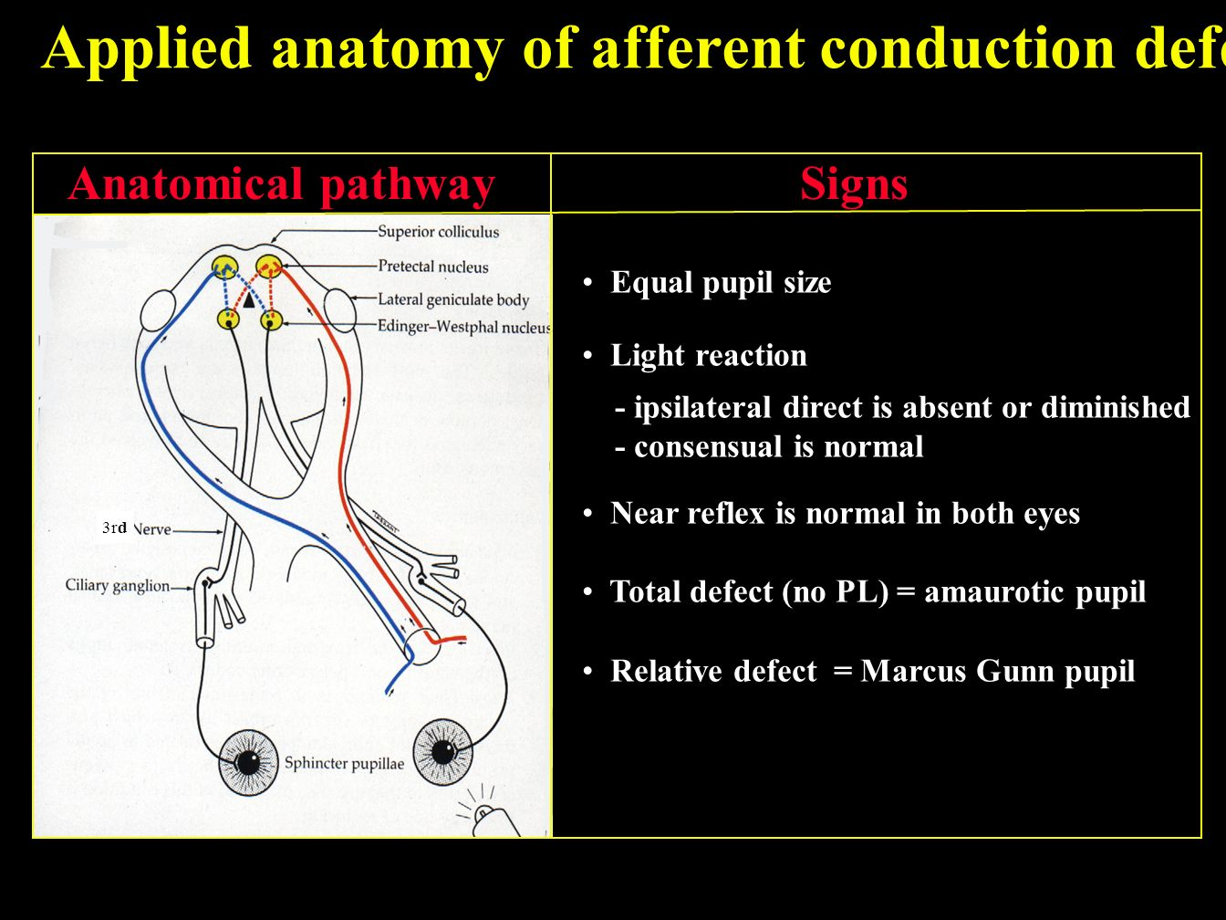 marcus gunn syndrome