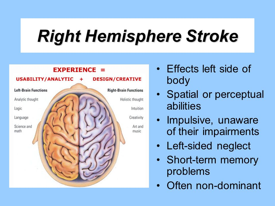 Right Hemisphere Stroke