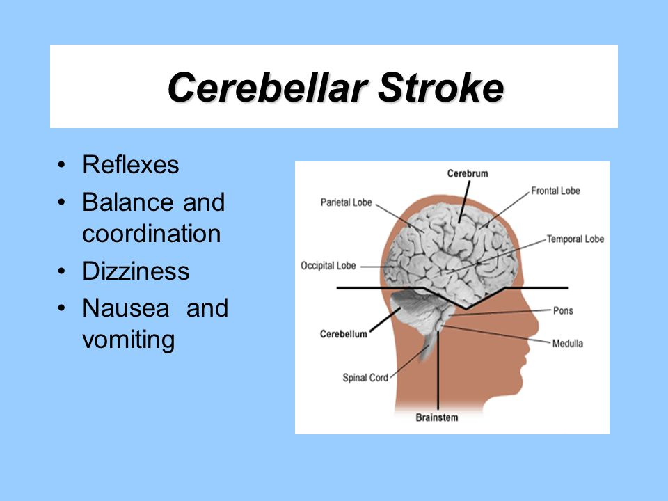 Cerebellar Stroke Reflexes Balance and coordination Dizziness