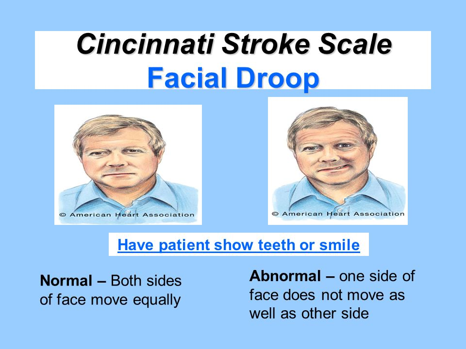 Cincinnati Stroke Scale Facial Droop