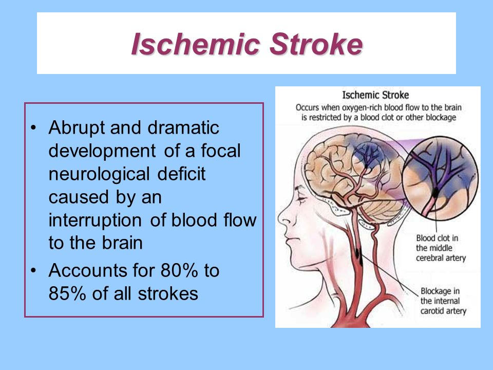 Ischemic Stroke Abrupt and dramatic development of a focal neurological deficit caused by an interruption of blood flow to the brain.