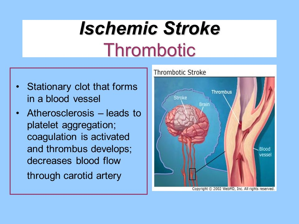 Ischemic Stroke Thrombotic