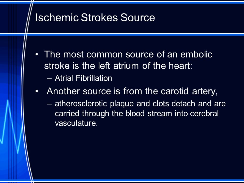 Ischemic Strokes Source