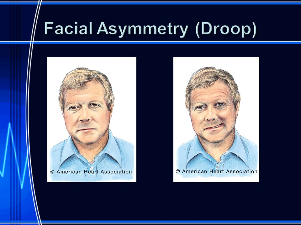 Facial Asymmetry (Droop)