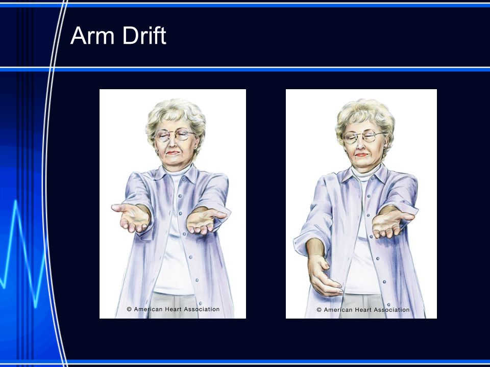 Arm Drift