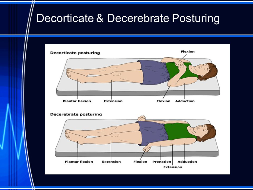 Decorticate & Decerebrate Posturing