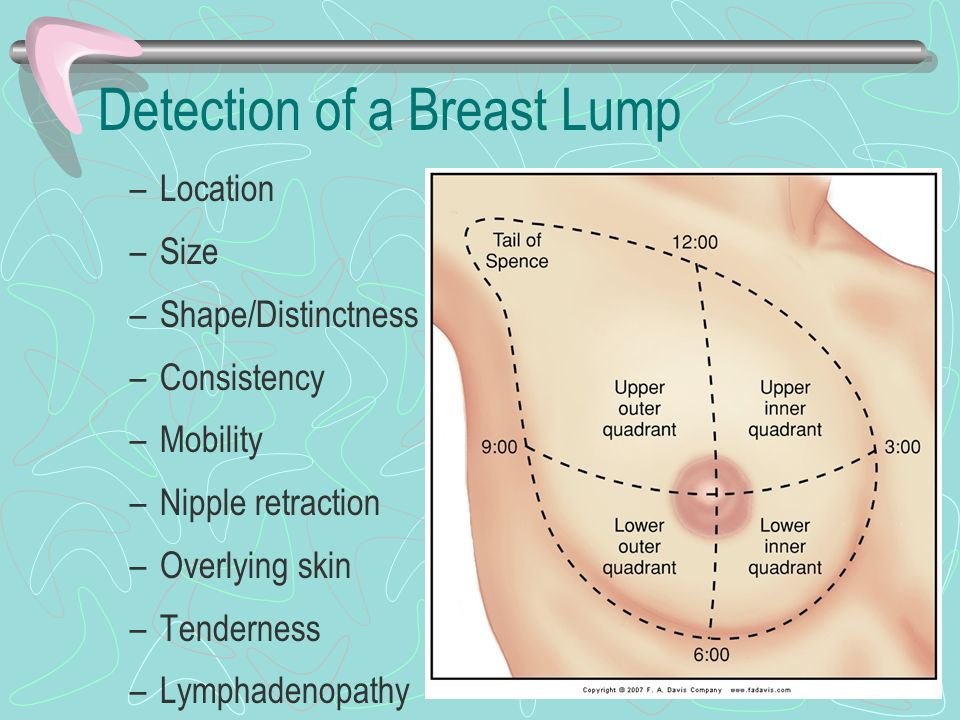 Breasts And Regional Lymphatics Ppt Video Online Download