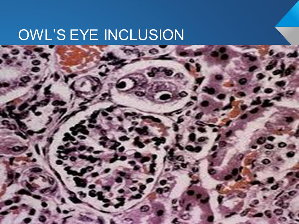 Samuel Aguazim MD Lange Chapters 37 & ppt video online ... Owl Eye Inclusion