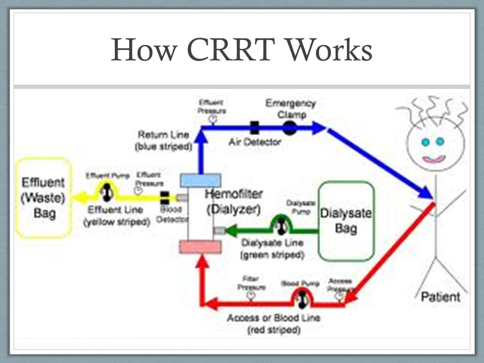 Continuous Renal Replacement Therapy (CRRT) - ppt download