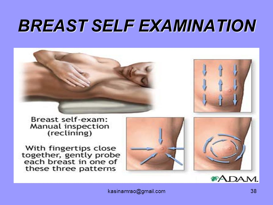 Self discharge breast exam