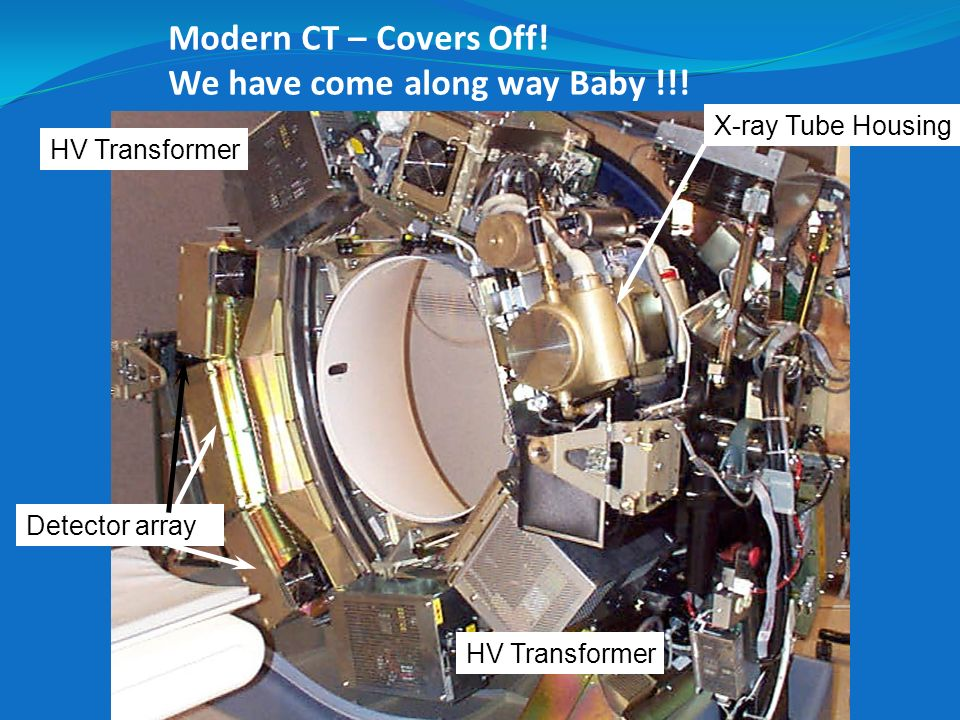 Modern CT – Covers Off! We have come along way Baby !!!