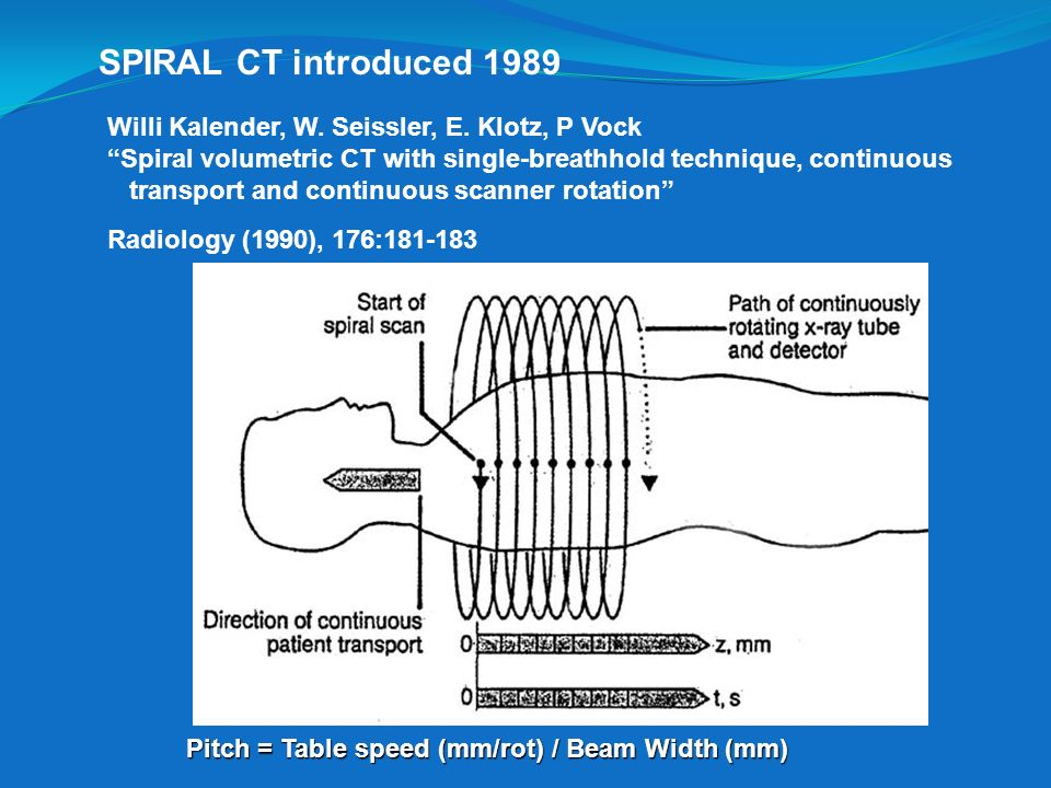 SPIRAL CT introduced 1989 Willi Kalender, W. Seissler, E. Klotz, P Vock. Spiral volumetric CT with single-breathhold technique, continuous.