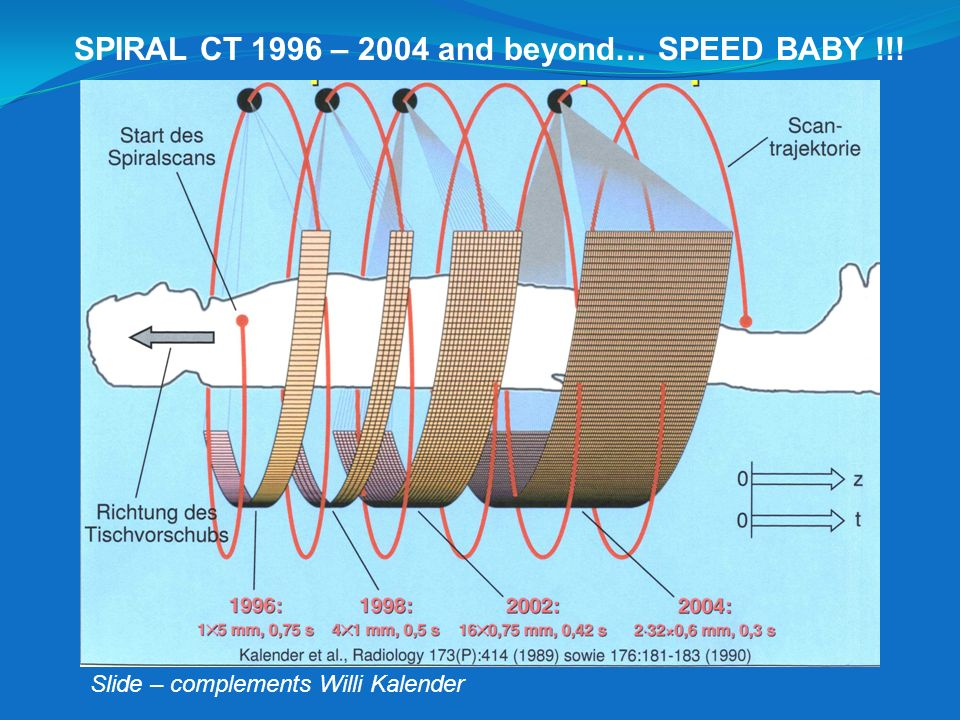 SPIRAL CT 1996 – 2004 and beyond… SPEED BABY !!!