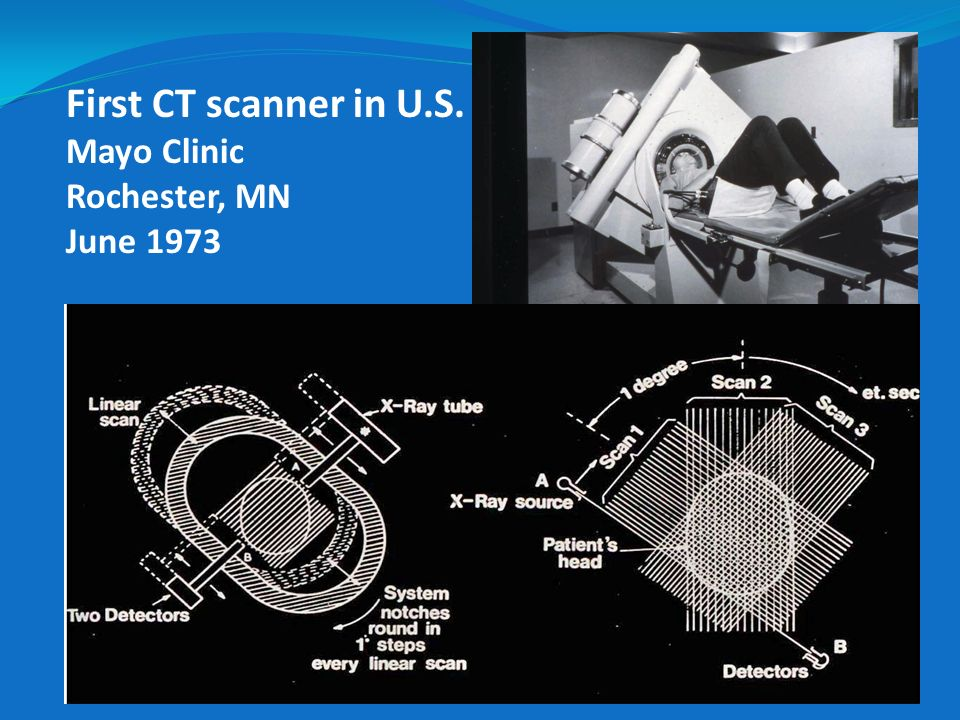 First CT scanner in U.S. Mayo Clinic Rochester, MN June 1973