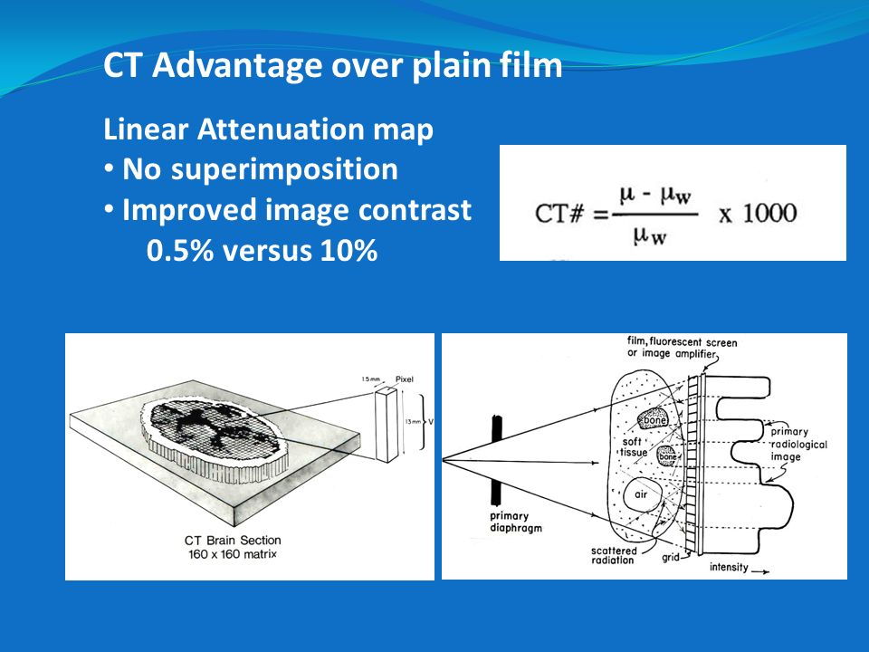 CT Advantage over plain film