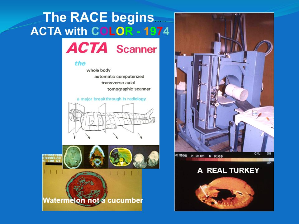 The RACE begins….. ACTA with COLOR - 1974 A REAL TURKEY