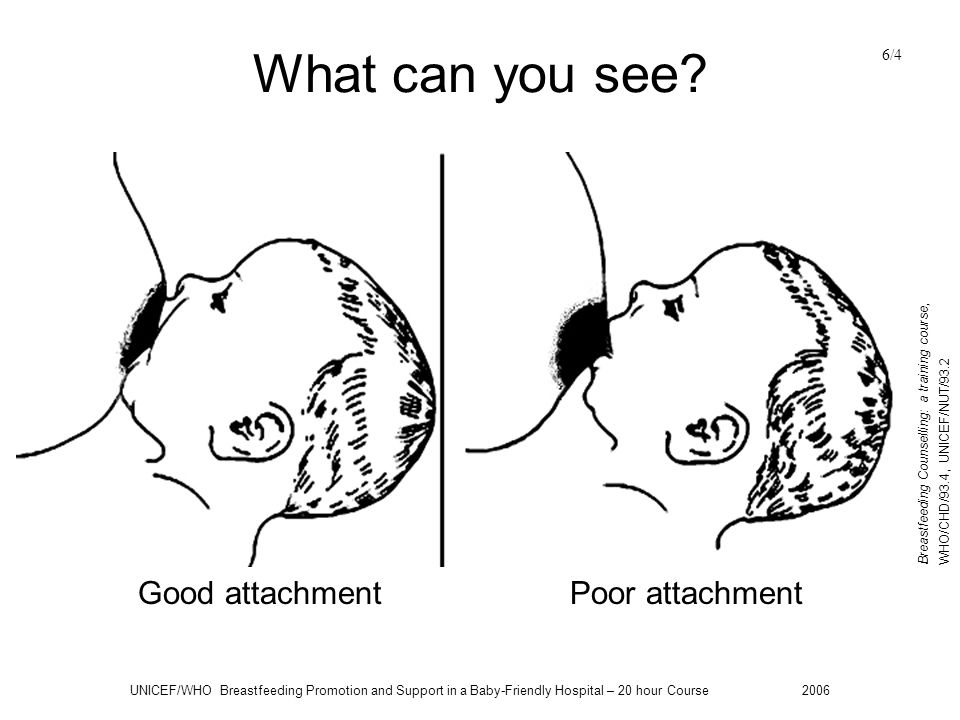 What can you see Good attachment Poor attachment 6/4