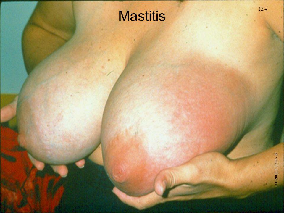 Mastitis 12/4. ©UNICEF C107-39.