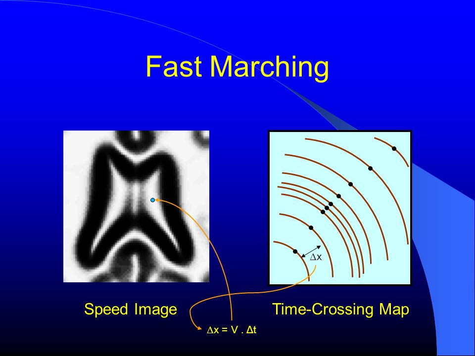Fast Marching Δx Δx = V . Δt Speed Image Time-Crossing Map