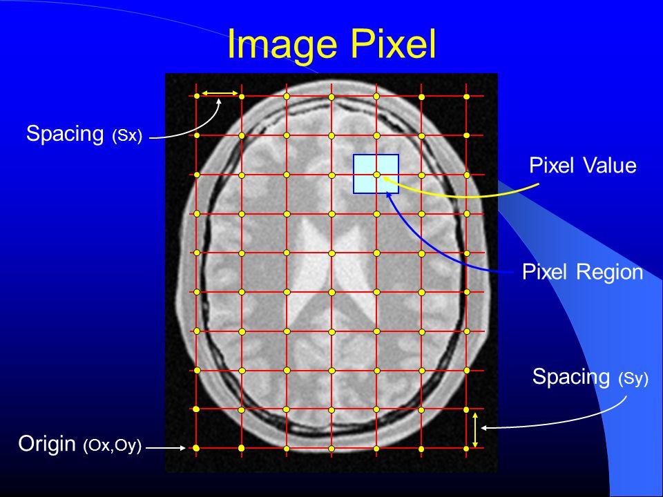 Image Pixel Spacing (Sx) Pixel Value Pixel Region Spacing (Sy)
