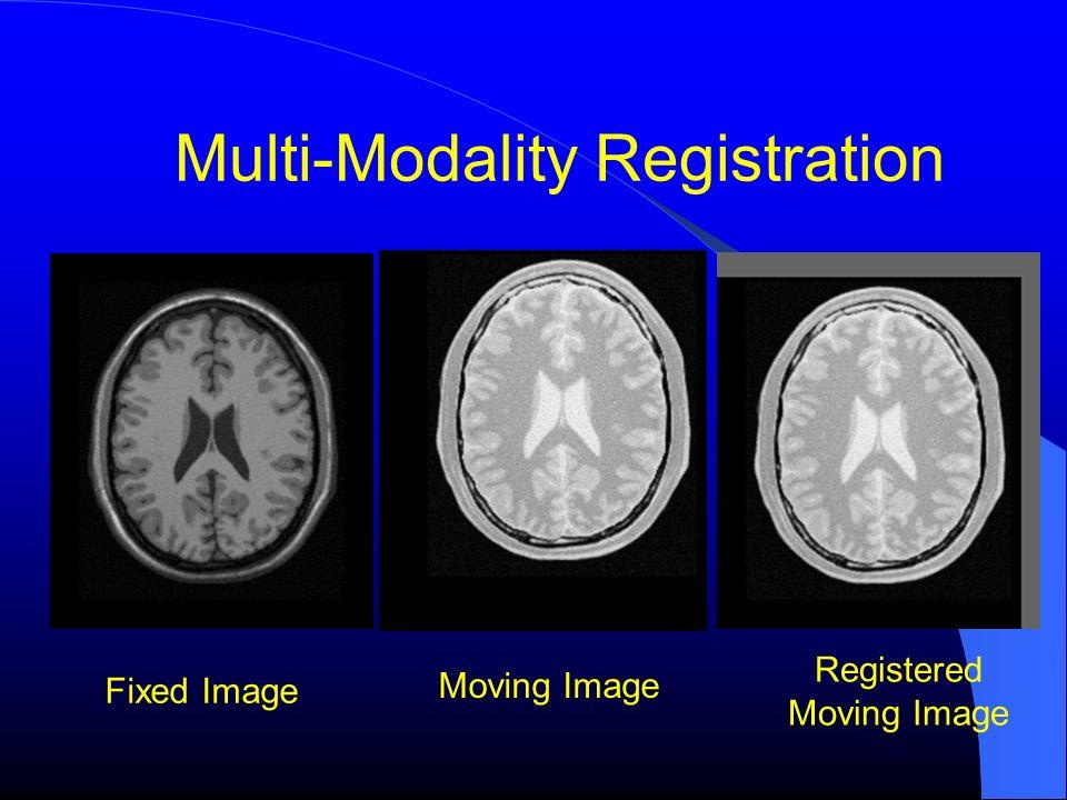Multi-Modality Registration